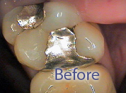 Tooth before composite filling replacement, composite fillings, West Bridgewater MA dentist, tooth-colored fillings, southeastern MA dental care