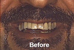 Before front tooth crown insertion, porcelain dental crowns, West Bridgewater MA dental care