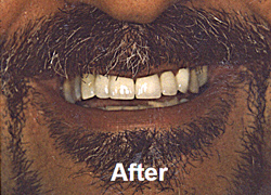 After front tooth crown insertion, porcelain dental crowns, West Bridgewater MA dental care